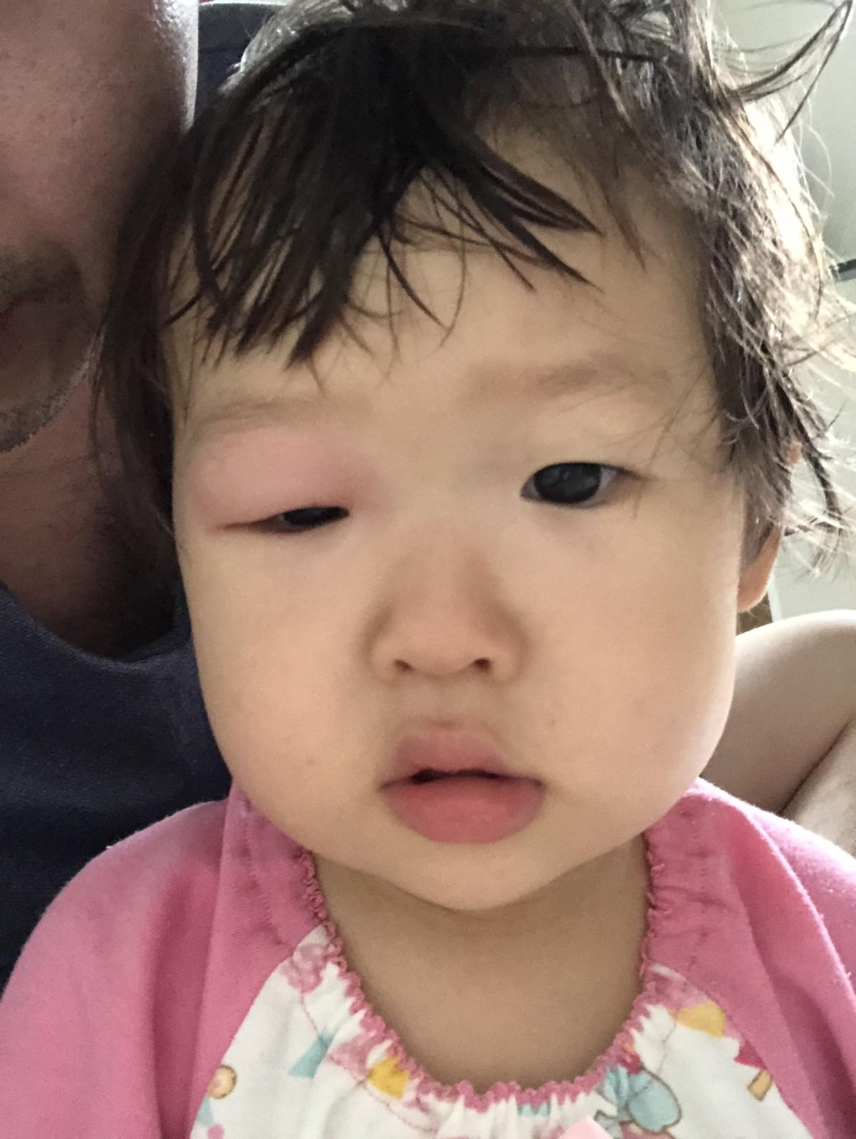 image-ねねちゃんの目が腫れまくった | パパ部